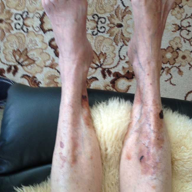 legs treated with vitamin c DHAA serum