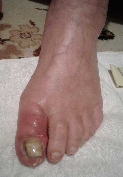 Infected toenail